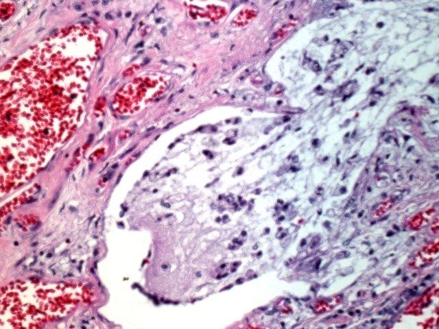 Not Adult cystic fibrosis nonsense!